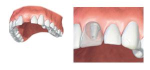 implantat-1