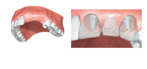 implantatvec