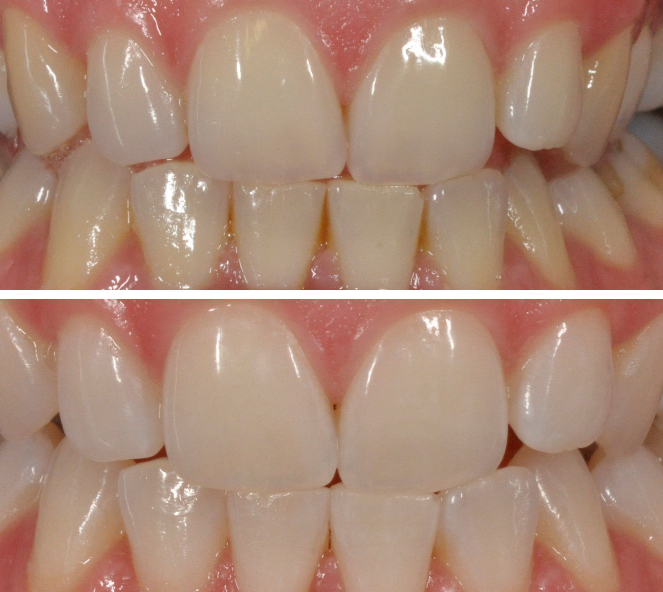 Teeth Whitening Dentalni Studio Skorjanc