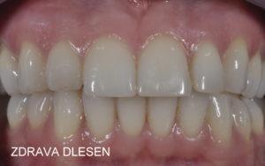 zdrave dlesni1